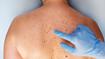 Workshop Verwijderen van huidoneffenheden 30 okt. 2020 2